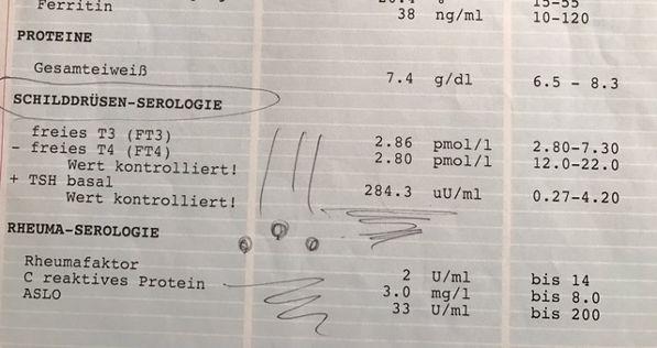 Hypotyreoosi – minun tarinani – Rooslife 5bffac0e6b